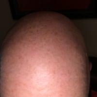 Baldybonce