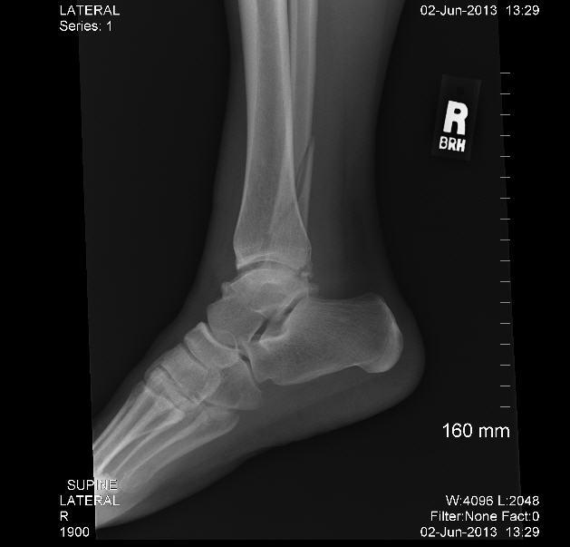 Spiral Ankle Fracture - Question for Docs, PT, etc. — BallOfSpray ...