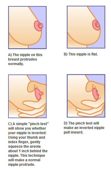 Different types of nipples