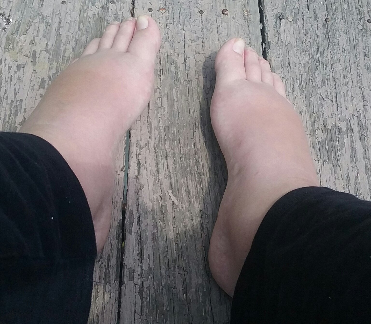 Swollen feet, borderline preeclampsia (picture included ...Preeclampsia Swelling Vs Normal Swelling