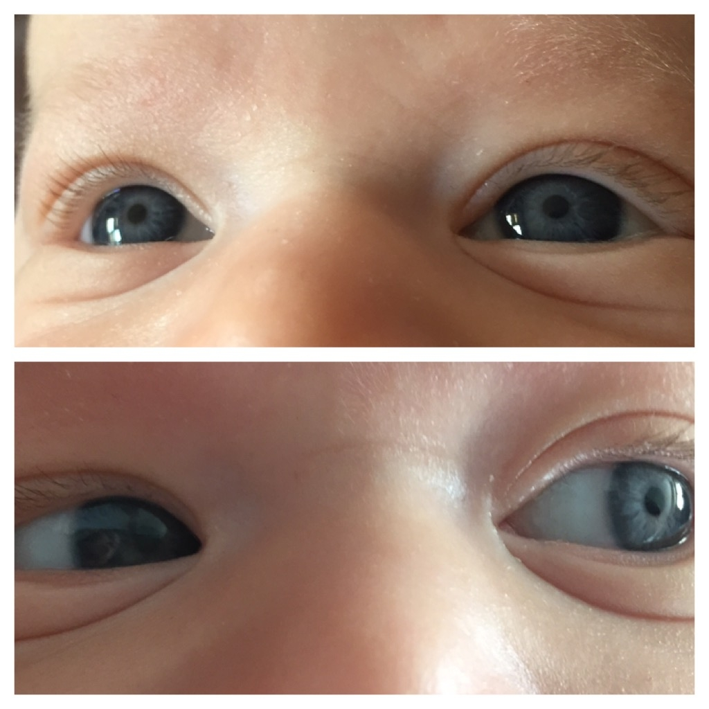 Why the eye color of a newborn changes. Causes of strabismus 50