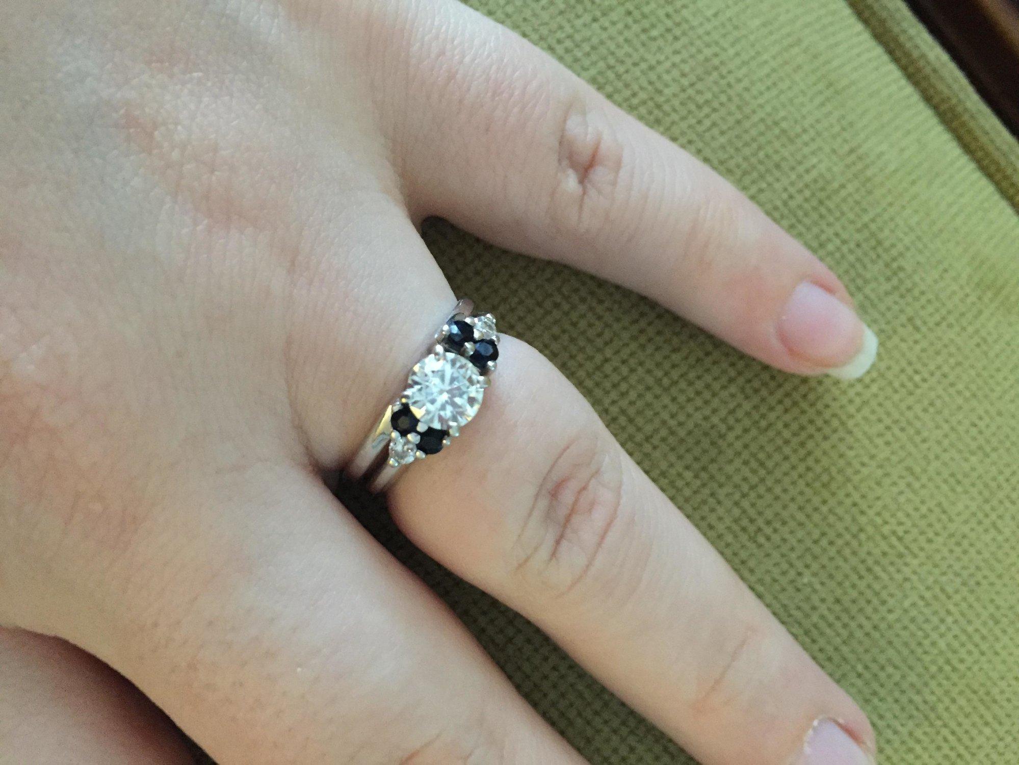 89 allergic to wedding ring medium size of wedding