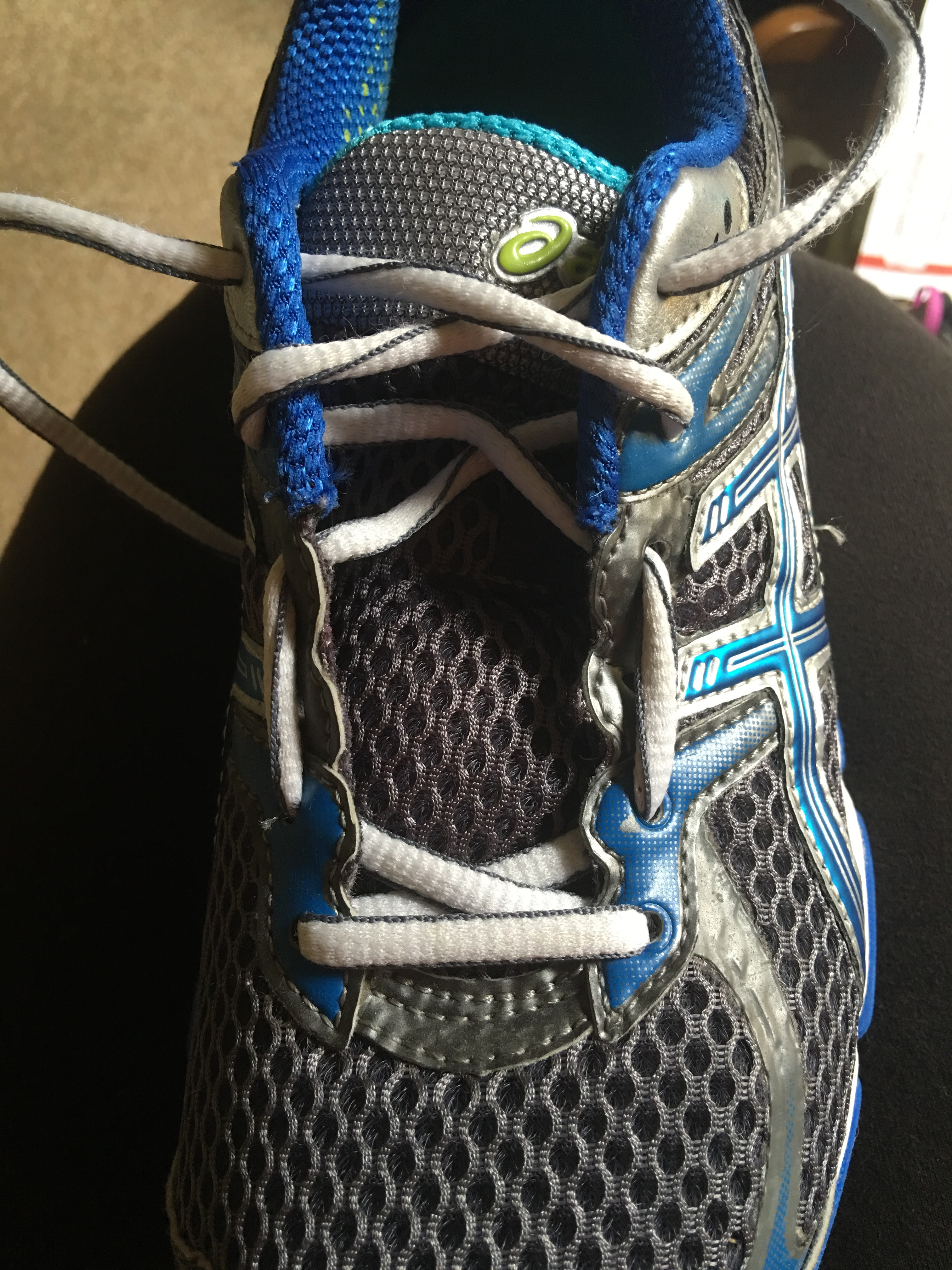 Toes Going Numb In New Running Shoes