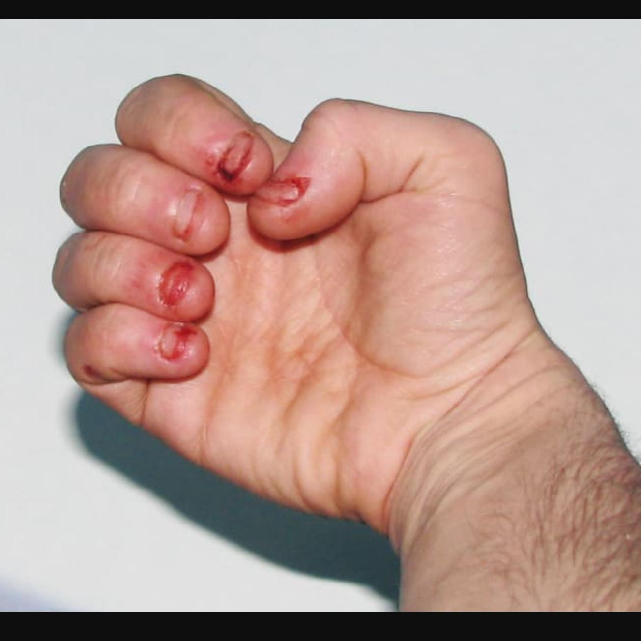 Когда грызут ногти
