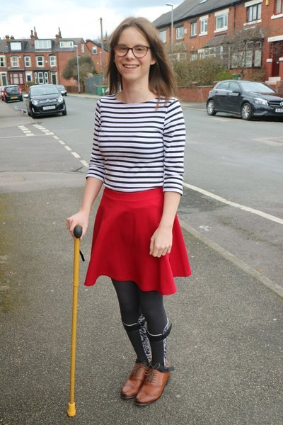 full length photo of a young woman with short brown hair and classes with a cane and wearing leg splints dressed in a blue and white stripy top and bright red skirt