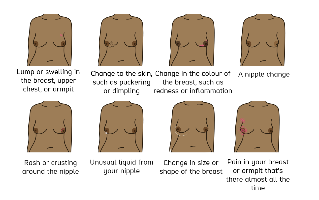 series of photos illustrating the signs of possible breast cancer as listed below