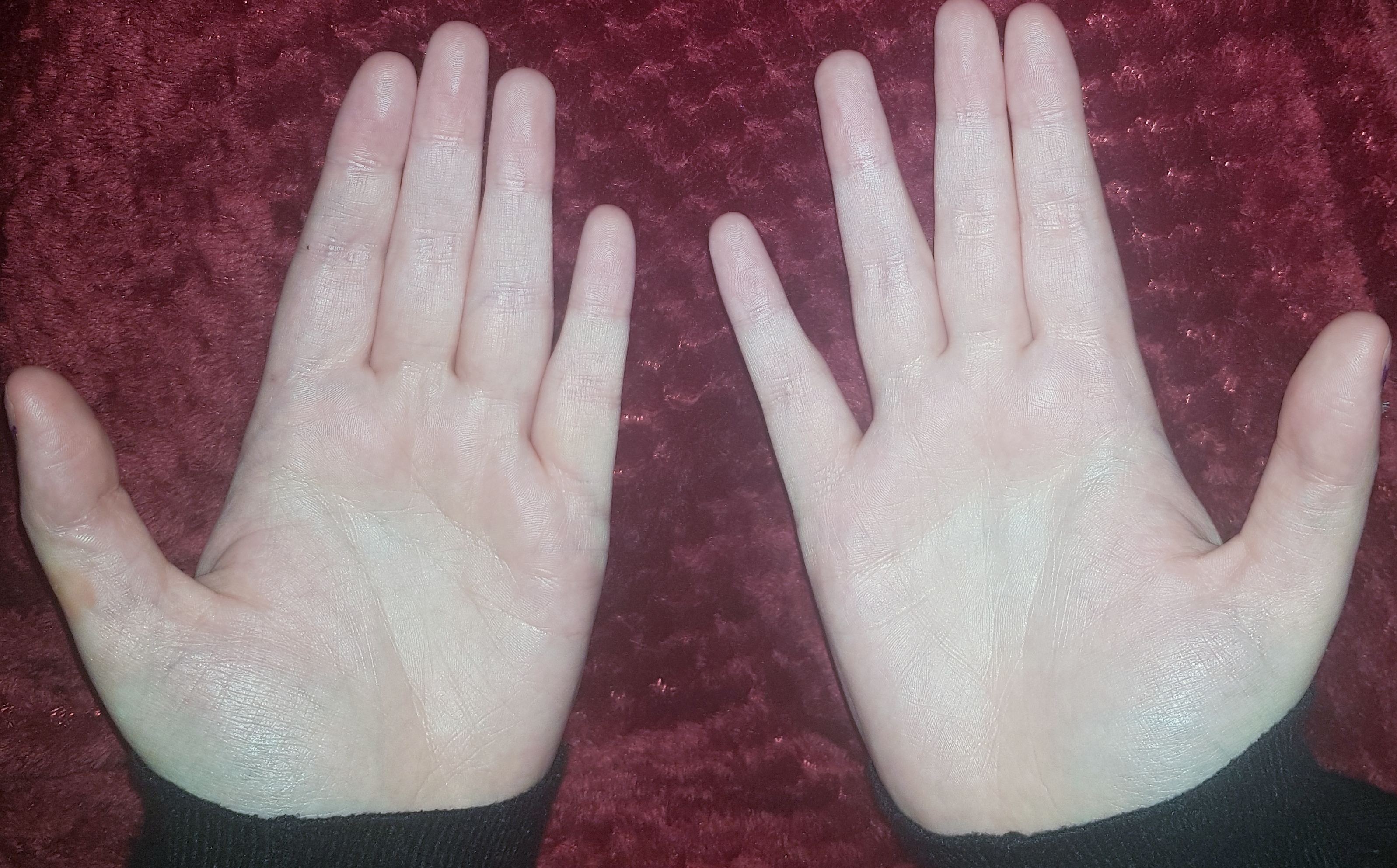 """Ehlers Danlos and """"witch fingers"""""""
