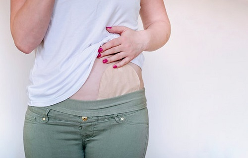women with white t-shirt pulled up to show stoma