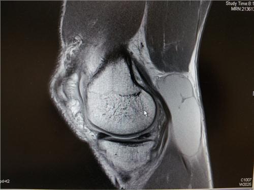 /members/images/345267/Gallery/MRI_scan_May_2012_Left_knee2.jpg