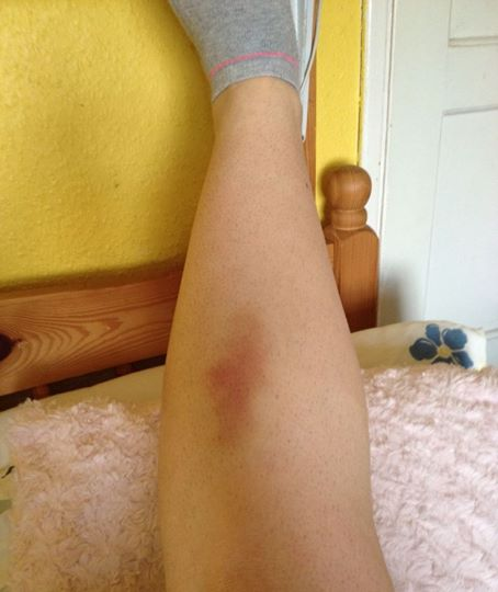 /members/images/509622/Gallery/bruised_leg_0.jpg