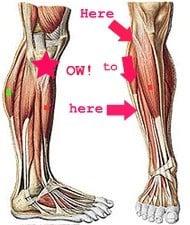 /members/images/594259/Gallery/leg_pain.jpg