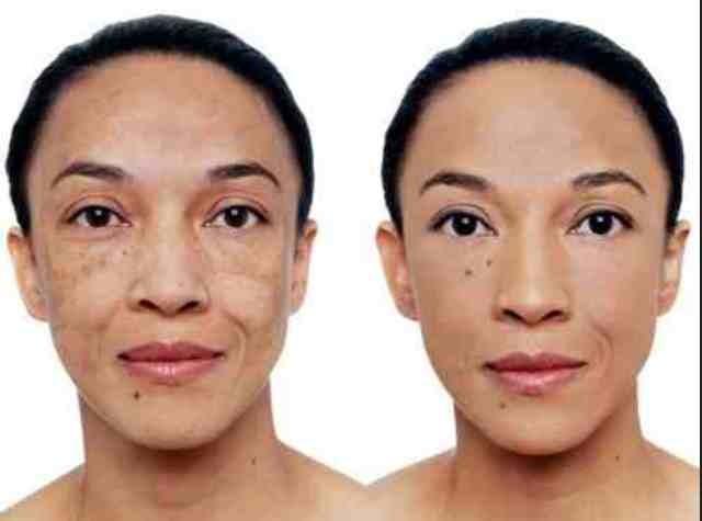 Concealer for acne scars? — CurlTalk