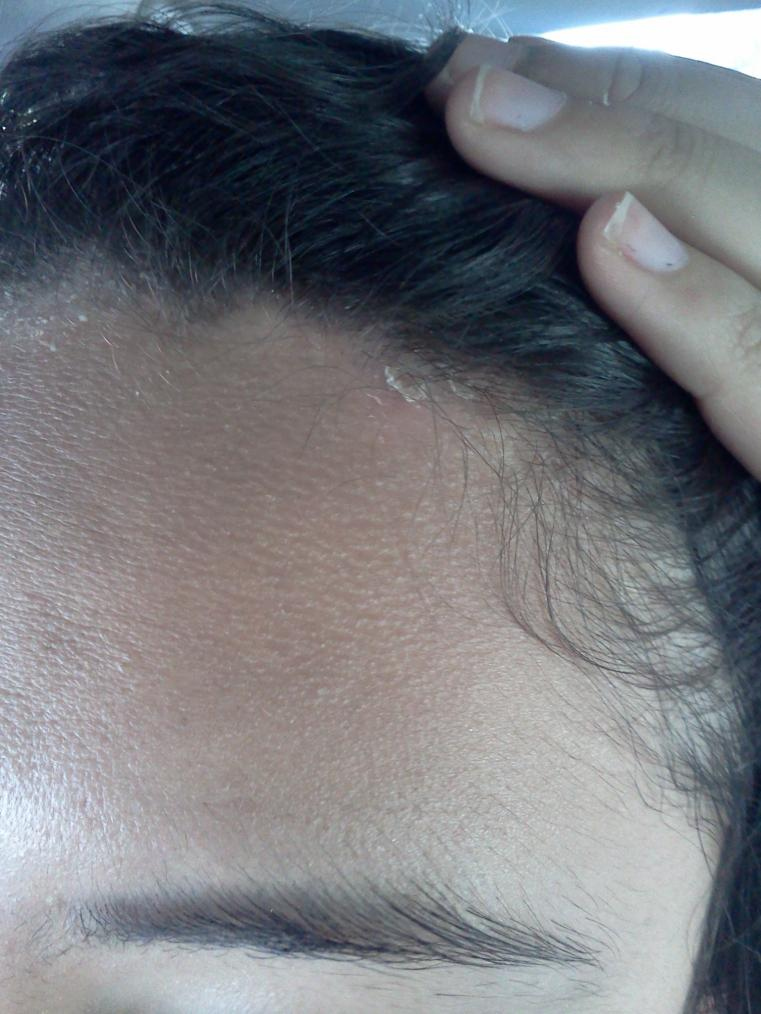 how to get rid of spots on scalp