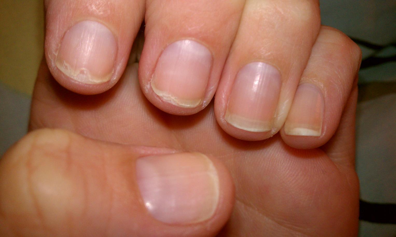 June 2012 Nail Growth Challenge - 2 Months — CurlTalk