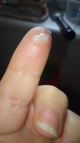 cervical mucus help plz tmi pic uploaded — MadeForMums Forum