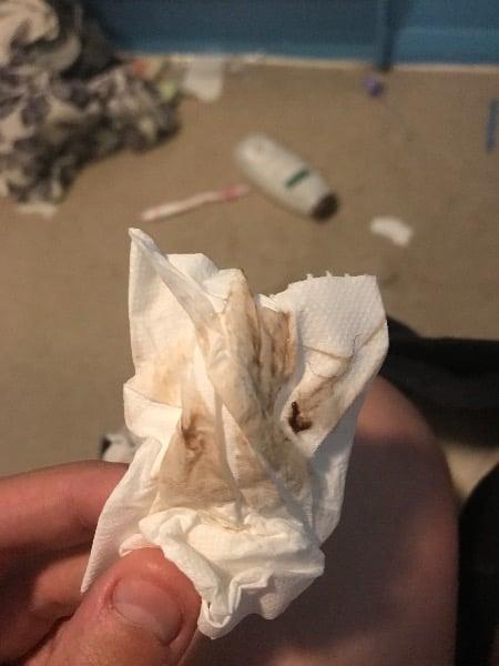 Implantation bleeding — MadeForMums Forum