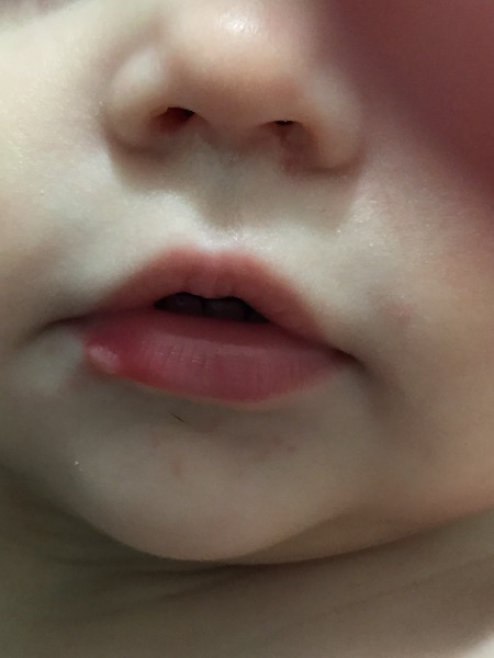 Does my Daughter have a cold sore? — You & Your Wedding