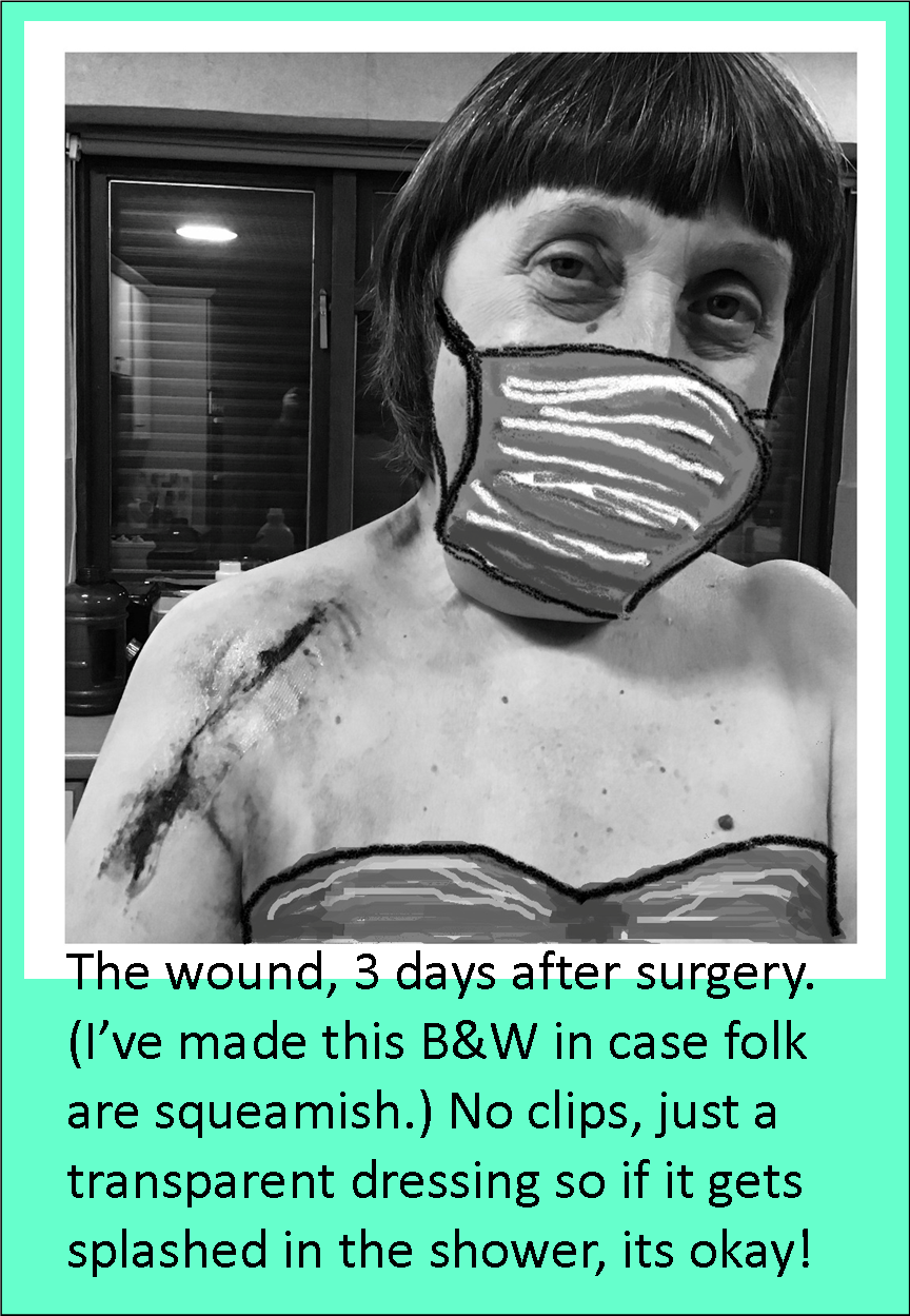 Wound 3 days post surgery masked.png