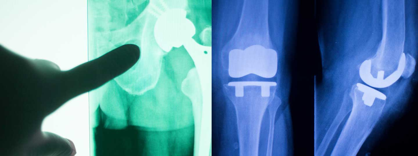joint-replacement-1440x540.jpg