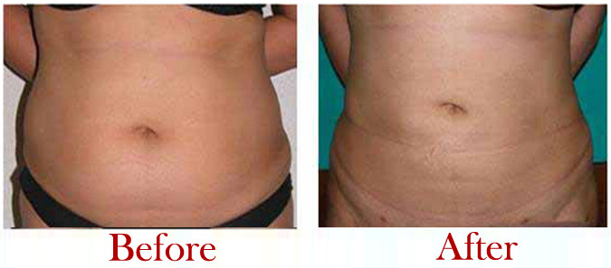 liposuction-pic-5.jpg